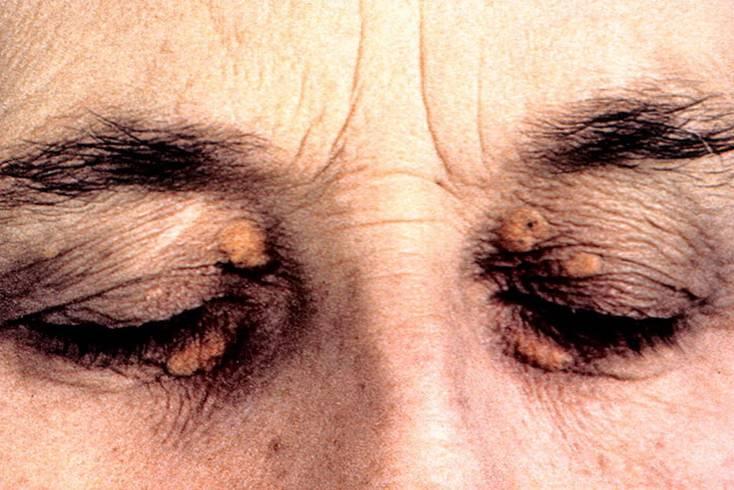 Ксантелазма век: причины, симптомы (фото), лечение в домашних условиях народными средствами, удаление ксантомы лазером