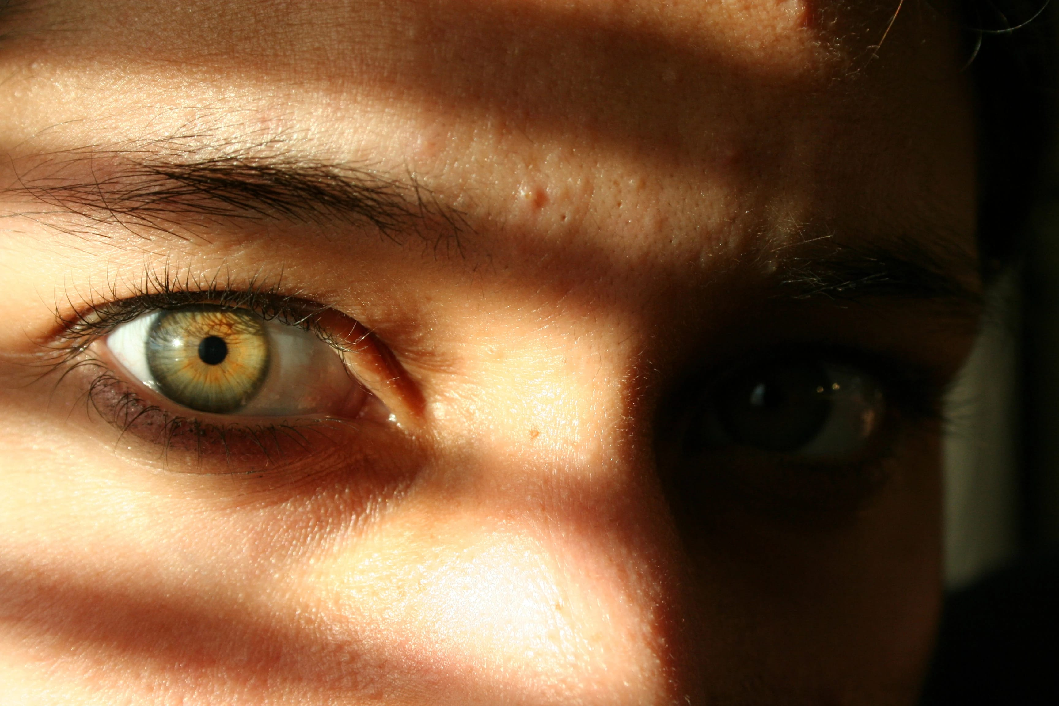 Почему слезятся глаза на солнце и ярком свете
