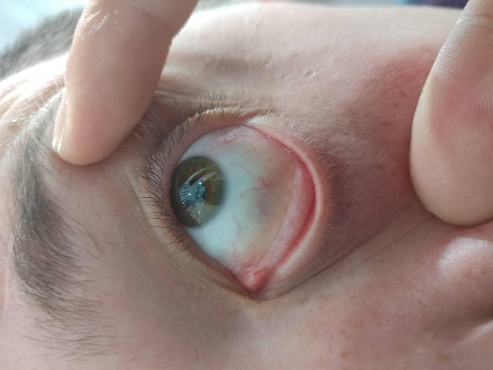Синие белки глаз причины. из-за чего бывают голубыми белки глаз? симптомы, диагностика и лечение