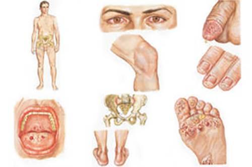 Синдром алисы в стране чудес, эффекты искажения восприятия, микропсия