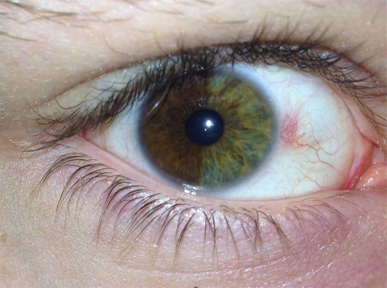 Невус хориоидеи глаза: симптомы, причины, лечение, что это такое и каков прогноз, виды (пигментный, прогрессирующий, атипичный), удаление