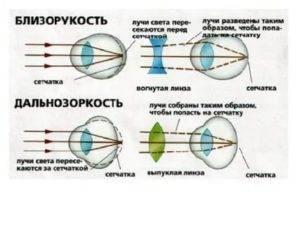 Какой максимальный минус зрения у человека при миопии