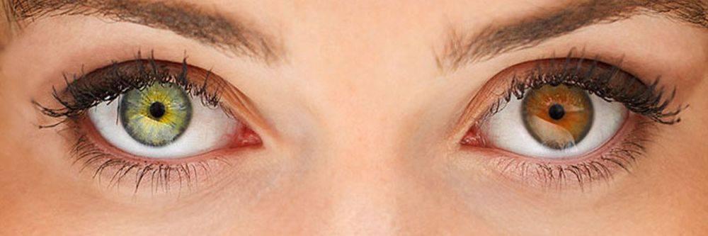 Как заболеть гетерохромией глаз и стоит ли оно того oculistic.ru как заболеть гетерохромией глаз и стоит ли оно того