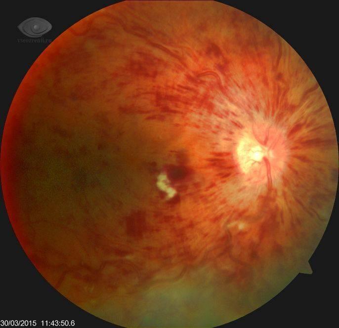 Тромбоз центральной вены сетчатки глаза – симптомы и лечение тромбоза цвс