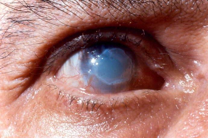 Химический ожог глаза - лечение, первая помощь, последствия
