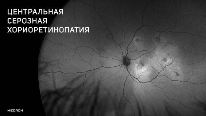 Центральная серозная хориоретинопатия