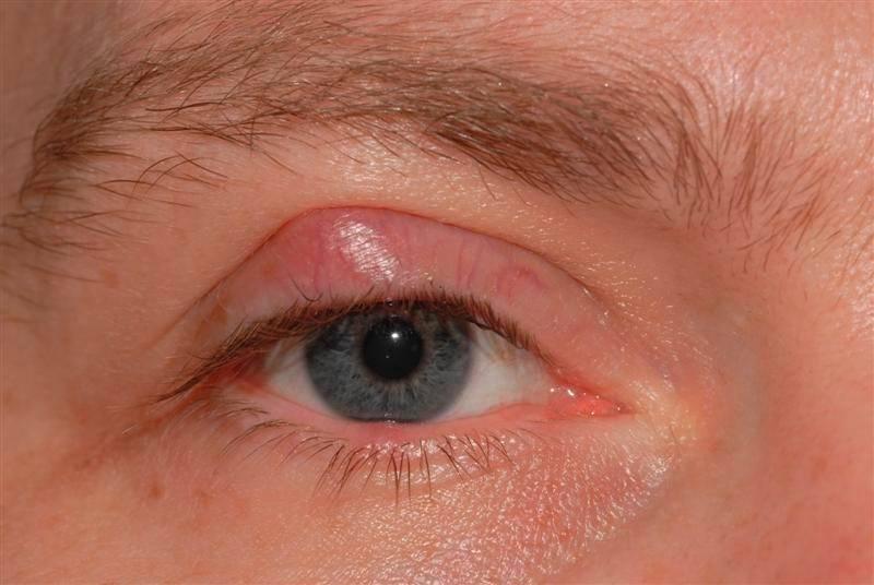 Ячмень на нижнем веке глаза: как и чем быстро вылечить воспаление