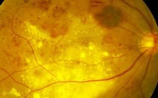 Фоновая ретинопатия глаз