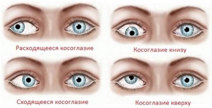 """Содружественное косоглазие: причины, виды, лечение -""""здоровое око"""""""