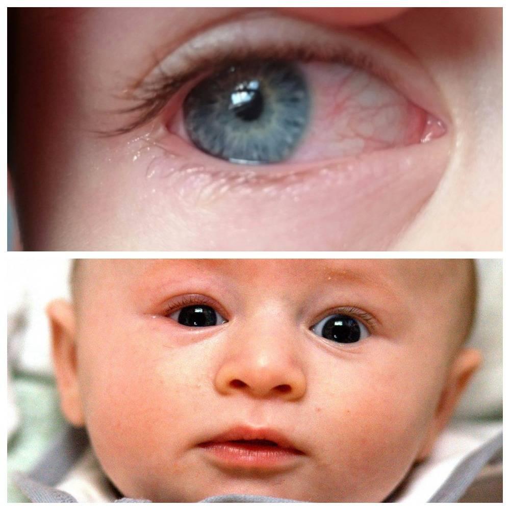 Закисают глаза у ребёнка: причины, лечение oculistic.ru закисают глаза у ребёнка: причины, лечение