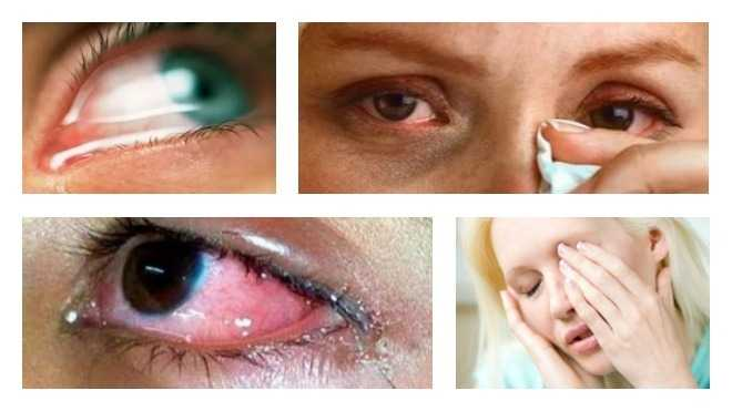 От чего болят глаза после слез