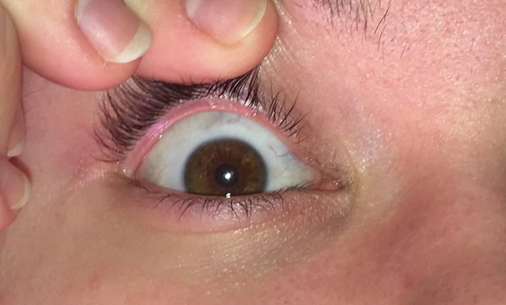 Образование, возникшее на белке слизистой глаза