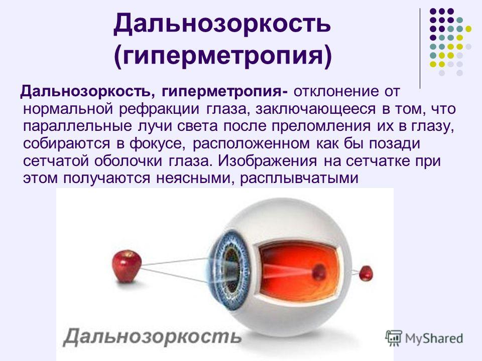 """Гиперметропия средней степени: симптомы и лечение - """"здоровое око"""""""