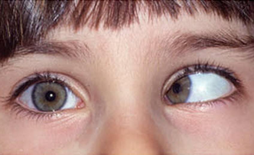 Почему больно двигать, шевелить глазами и стоит ли волноваться?