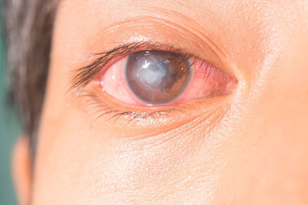 """Ожог роговицы класса: симптомы, лечение - """"здоровое око"""""""