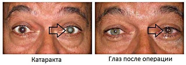 Вторичная катаракта после операции: что это такое, симптомы и лечение