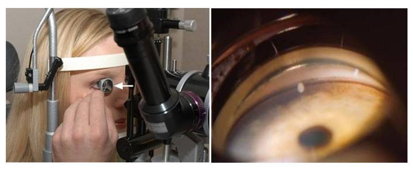 Гониоскопия при диагностике глаукомы - что представляет собой этот метод исследования и как правильно расшифровать заключение врача