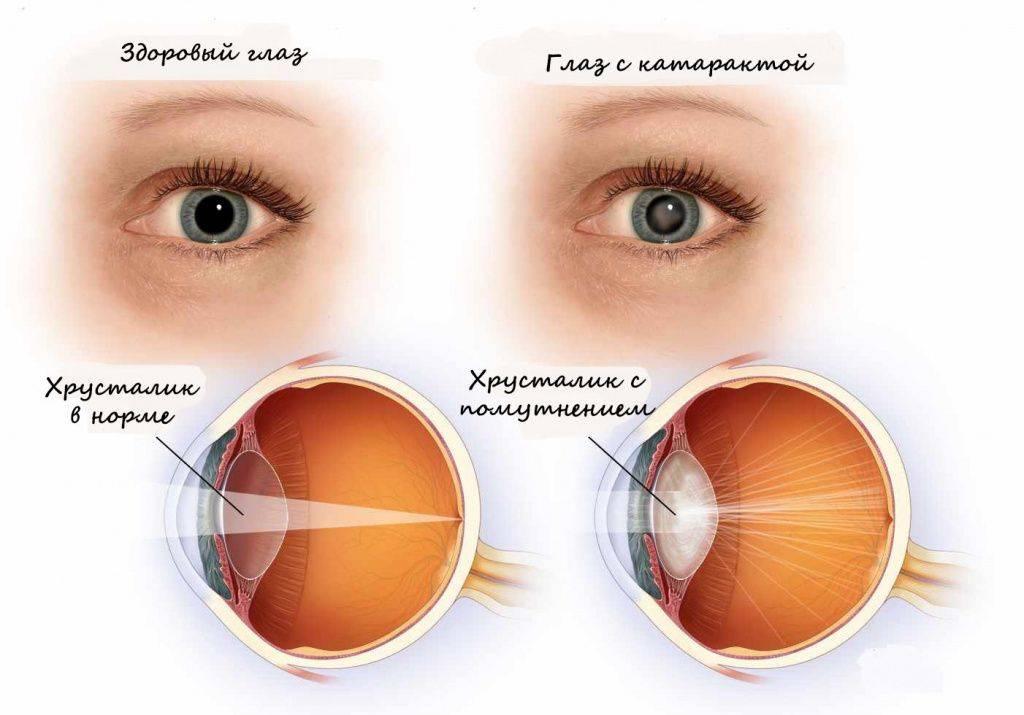 Мерцание в глазу после удаления катаракты