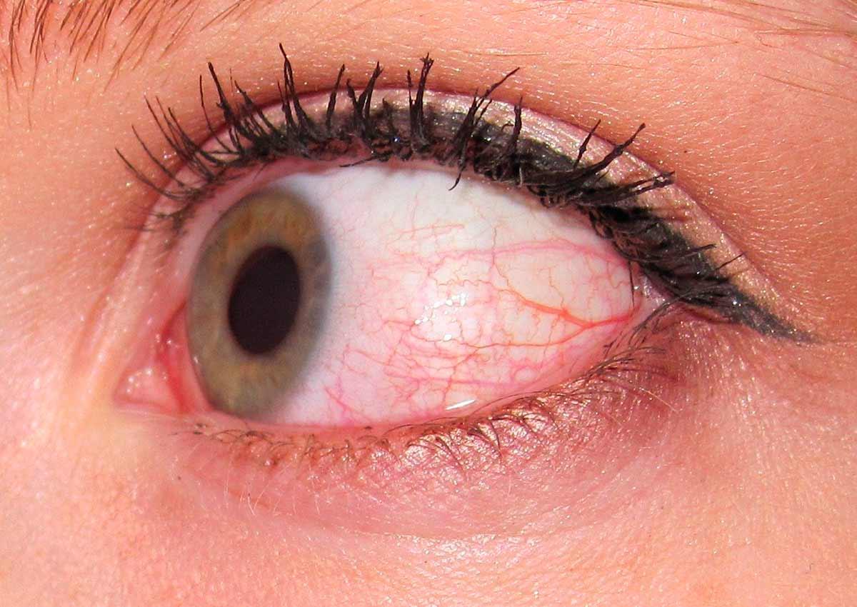 Лечение ощущения пелены перед глазами