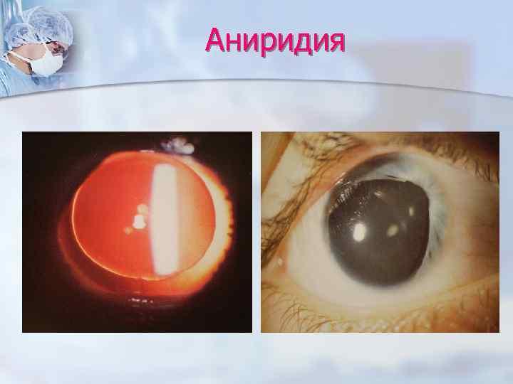 Аниридия — википедия. что такое аниридия
