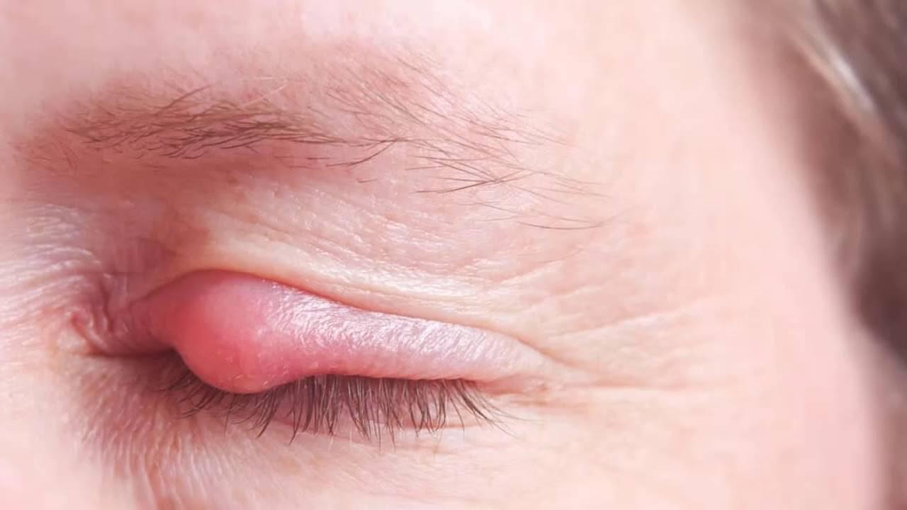 Левомеколь при ячмене на глазу: как правильно применять