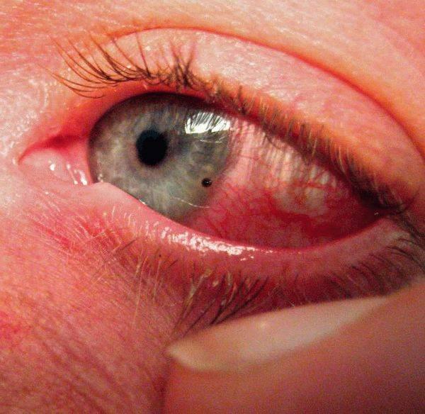 После сварки болят глаза, что делать?