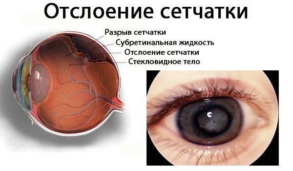 Причины отслоения сетчатки глаза: что это такое, от чего бывает возникновение отслойки, почему происходит, может быть из-за травмы