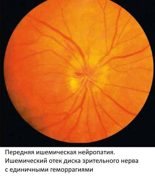 Ишемическая нейропатия: причины возникновения заболевания, симптомы и виды патологии, профилактика и лечение в которое входит медикаментозная терапия, лфк, физиотерапия