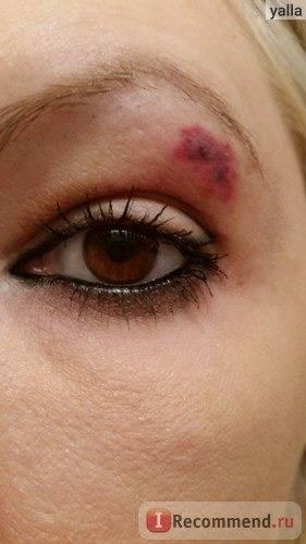 Появился синяк под глазом без удара: причины, гематома на верхнем веке, над, лечение