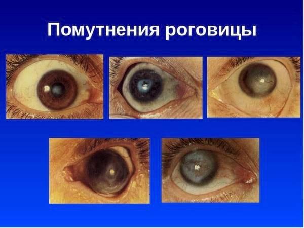 Болезни глаз у человека: описание