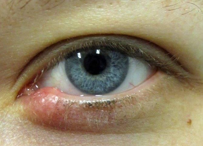 Можно ли греть ячмень на глазу: когда запрещено