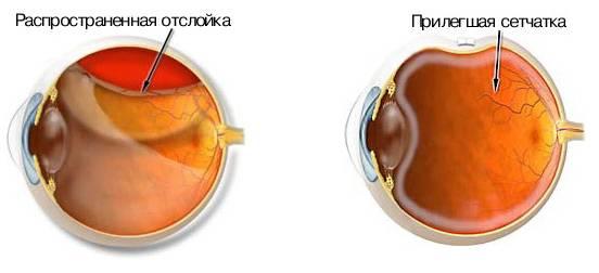 Лечение отслойки сетчатки глаза