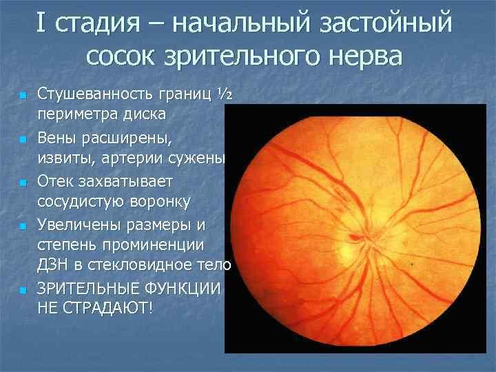 Отеки глаз: причины и лечение. отек зрительного нерва, боль в глазном яблоке - medside.ru