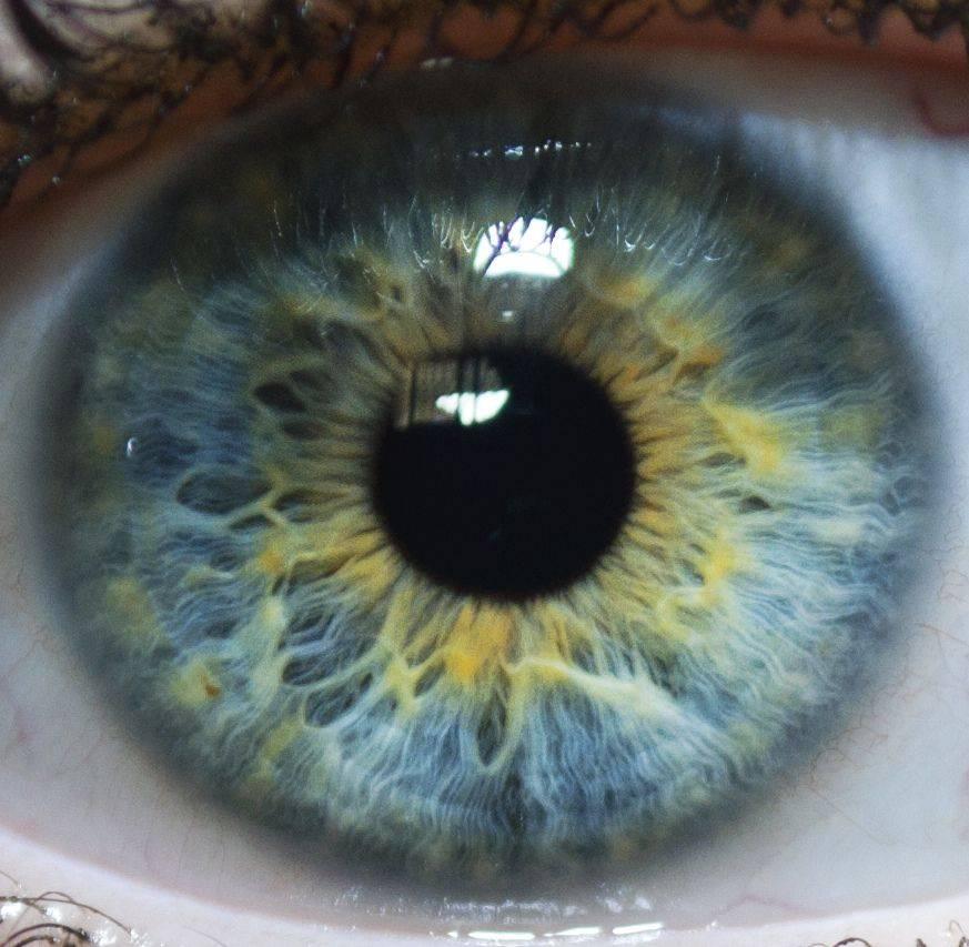 Глаза-хамелеоны: уникальность или патология?