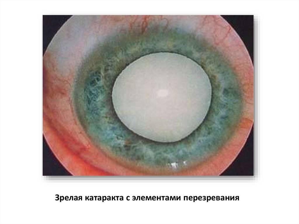Старческая катаракта: причины, симптомы и лечение