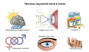 Причины ощущения песка в глазах, диагностика, лечение, отзыв