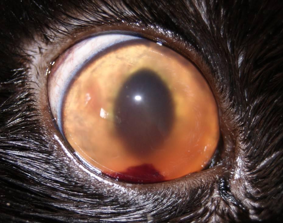 Увеит глаза: симптомы и лечение переднего, заднего увеита | полезно знать | healthage.ru