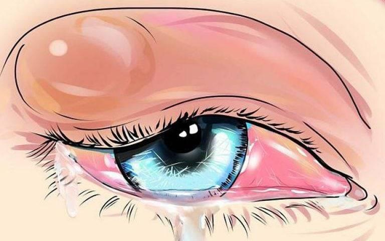 Ячмень на глазу, что это такое, причины, симптомы и как лечить