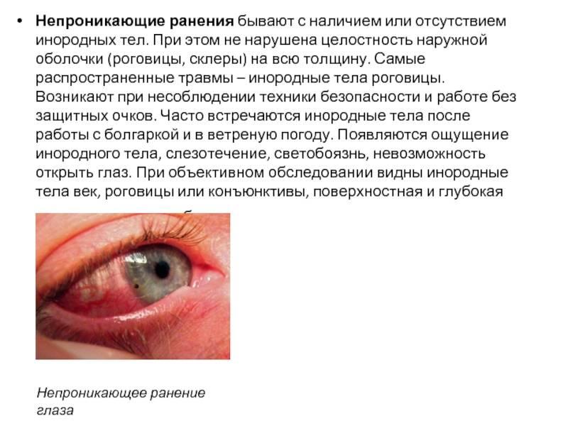 """Царапина на роговице глаза, первая помощь и лечение - """"здоровое око"""""""