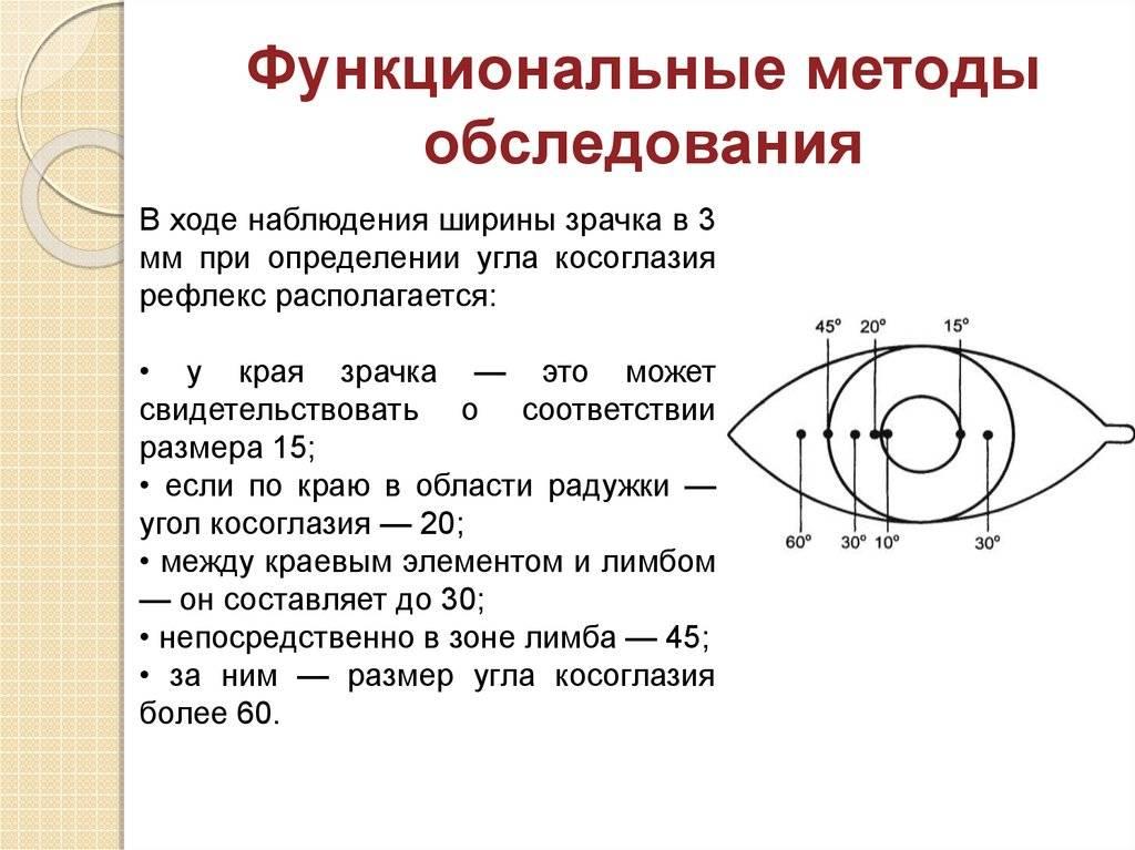 Как выполняется определение угла косоглазия по гиршбергу - медицинский справочник