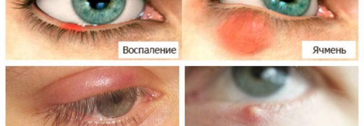 Народные средства от ячменя на глазу. заговор от ячменя на глазу