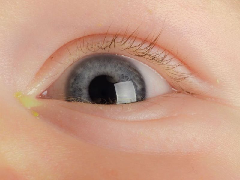 Гноятся глаза у ребенка: что делать, чем лечить и промывать в домашних условиях, почему появляется гной, температура, покраснение