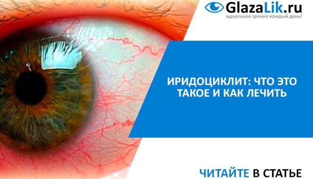 Иридоциклит: симптомы и лечение глазного заболевания oculistic.ru иридоциклит: симптомы и лечение глазного заболевания