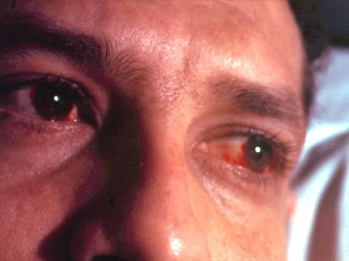 Осложнения вплоть до слепоты! хронический кератит и другие последствия заболевания