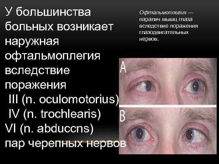 Офтальмоплегия - что это такое, лечение, причины, симптомы