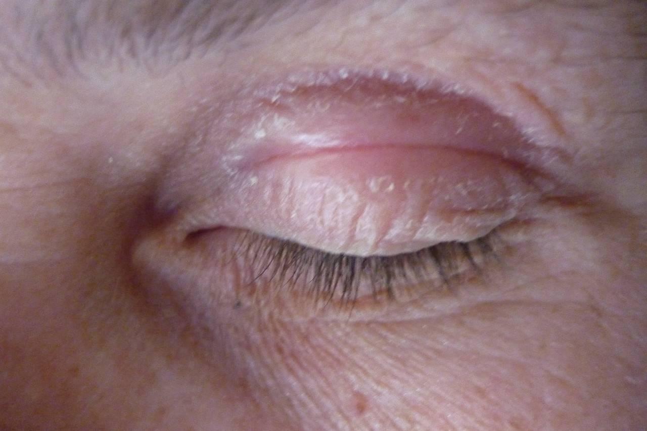 Кожа вокруг глаз покраснела покрылась коркой чешется и болит