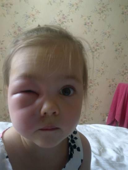 Как быстро снять отеки с глаз от аллергии