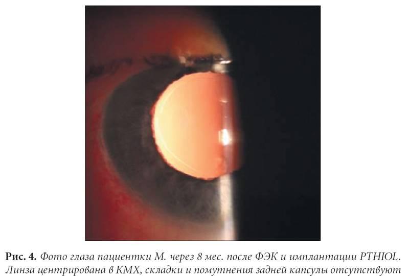 Первичный задний капсулорексис при факоэмульсификации катаракты с учетом состояния капсульного мешка хрусталика (стр. 2 ) | контент-платформа pandia.ru