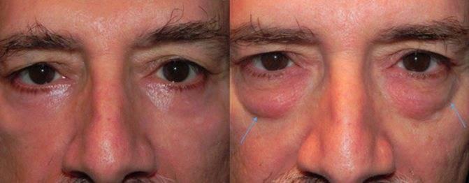 Мешки под глазами: причины у мужчин, почему черные или синие круги, что означают сильные проявления, как избавится