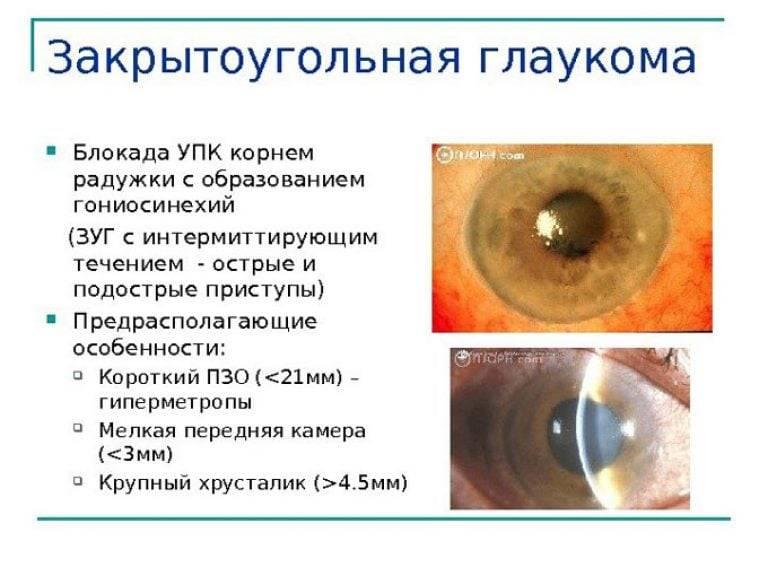 Закрытоугольная глаукома: что это такое, лечение и профилактика